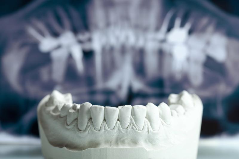 Protesi Studio dentistico Fornaciari